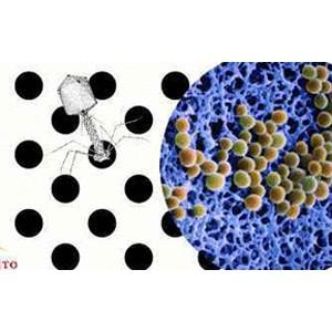 转让溶菌酶菌种和发酵技术