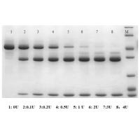 100万转让重组牛肠激酶项目Bovine, Recombinant Enterokinase (rEK),Expressed inP. Pastoris